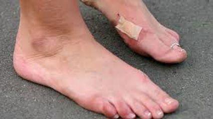 Gout Help
