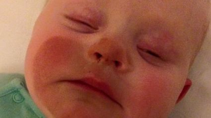 Mum Accidentally Fake Tans Baby