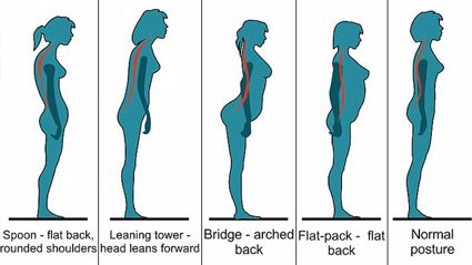 How Your Posture Determines Whether You Will Get Back Pain