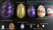 Picture goes viral after using Easter eggs as a guide for childbirth