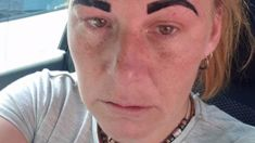 """Woman left with """"Angry Bird"""" eyebrows after botched beauty treatment"""