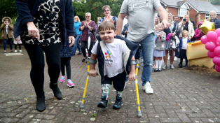 Five year old boy raises over 1 million pounds for completing walk on new prosthetic legs